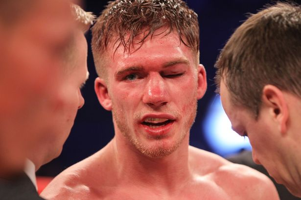 Sport stars tweet support to Nick Blackwell as boxer is placed in induced coma