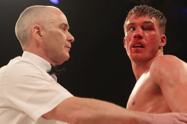 British boxing chief satisfied with handling of Nick Blackwell fight
